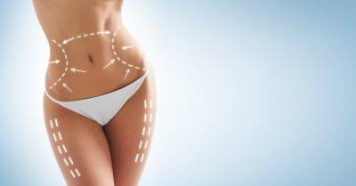 Liposuction: Achieving the Body Contour You Desire