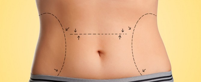Tummy Tuck: Firming-Up Self-Esteem