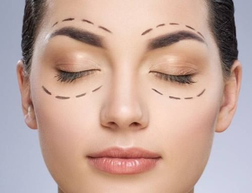 Eyelid Lift: Alert, Aware, and Attractive