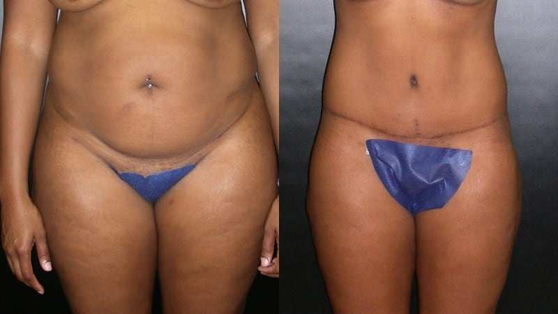 Dr. Meghan McGovern is a Savannah plastic surgeon who is expert at body lifts
