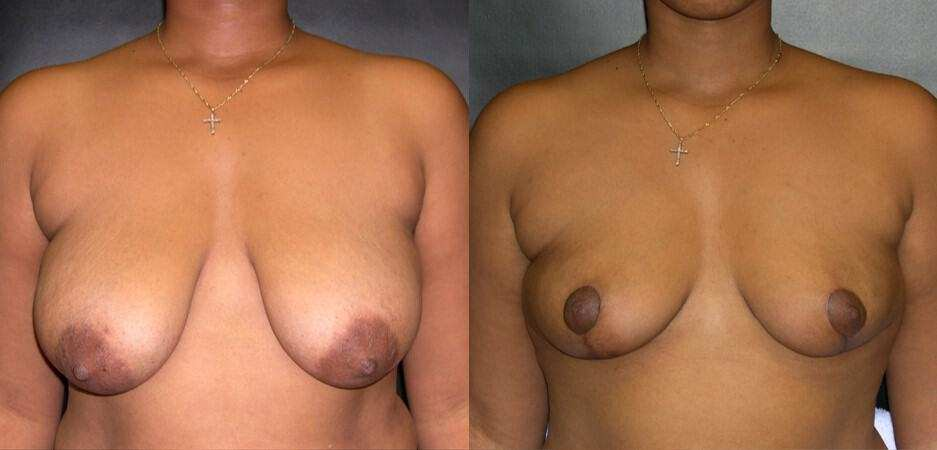 Dr. Meghan McGovern is a Savannah plastic surgeon who is expert at breast reductions