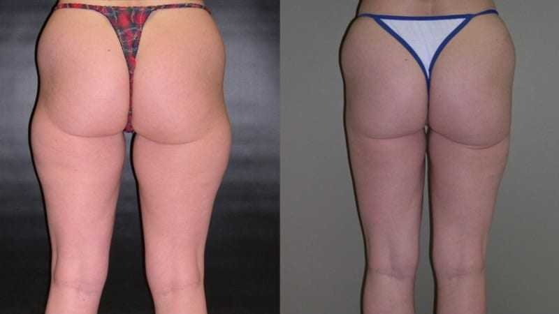 Dr. Meghan McGovern is a Savannah plastic surgeon who is expert at liposuction