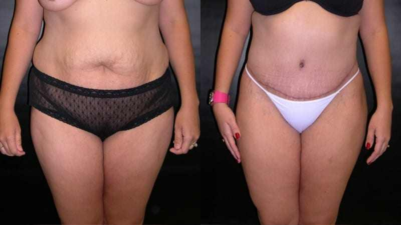 Dr. Meghan McGovern is a Savannah plastic surgeon who is an expert at abdominoplasty