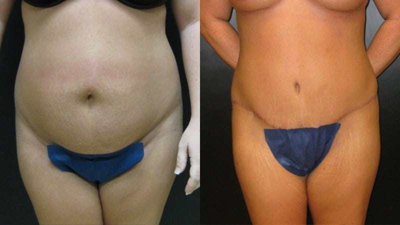 Dr. Meghan McGovern is an expert at abdominoplasty