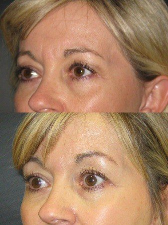 Dr. Meghan McGovern is a Savannah plastic surgeon who is expert at injectables