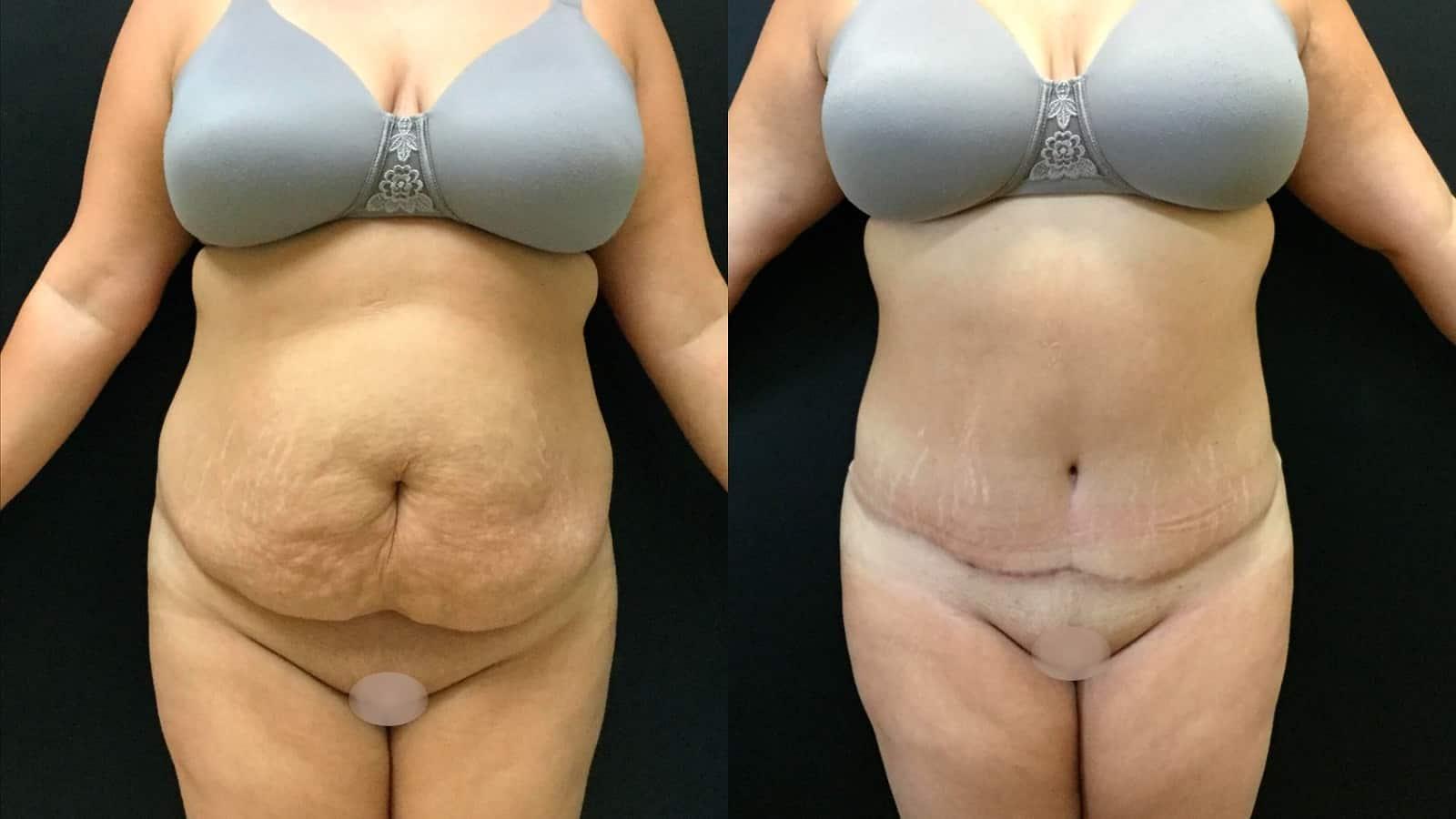 Dr. Meghan McGovern is an expert at tummy tucks
